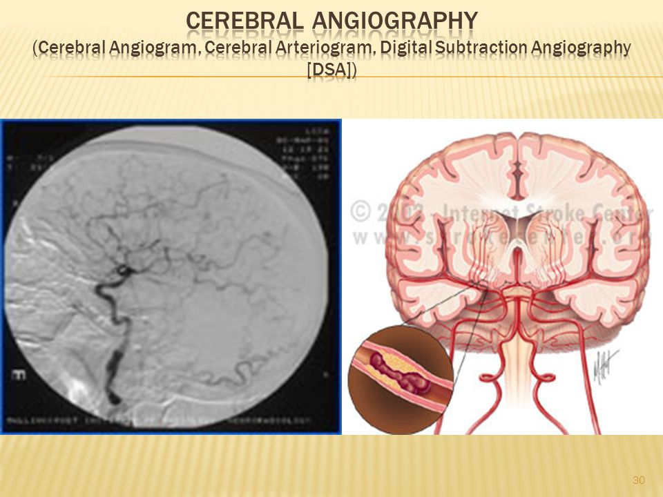 Cerebral Angiography (Cerebral Angiogram, Cerebral Arteriogram, Digital Subtraction Angiography [DSA])